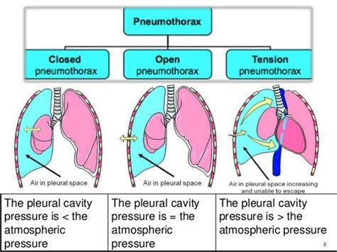 Simple And Spontaneous by Open Pneumothorax Pictures To Pin On Pinsdaddy