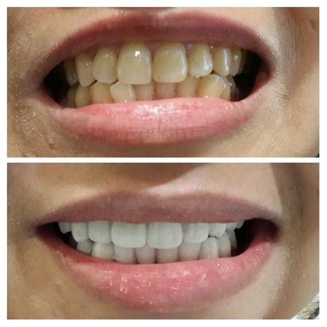 Biaya Pemutihan Gigi Veneer audy dental pondok bambu audy dental jakarta dental clinic newhairstylesformen2014