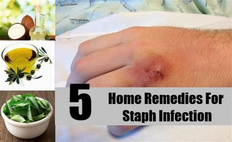 home remedies for bacterial infection on home