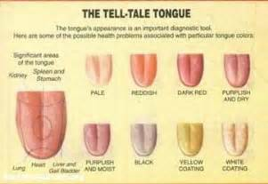 tongue color chart tongue diagnosis images frompo 1