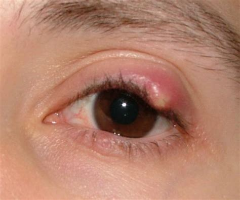 Has Disfigured Eyelids 2 by I A Bump On My Eyelid Doctors Answer Your Questions