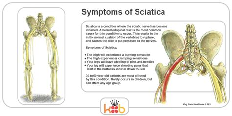 sciatic nerve diagram what are the back lower muscles search results