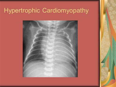cardiomyopathy after c section diabetes pregnancy by carolyn connors ppt download