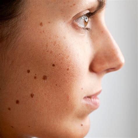 imagenes de michas blancas manchas en la piel cuando el melasma o cloasma afecta tu