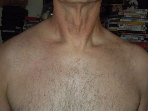 swelling left side of neck above collarbone swelling left side of neck above collarbone