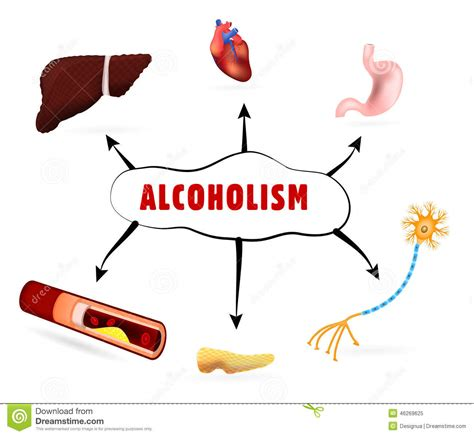 cartoon alcohol abuse physical effects of alcoholism stock vector image 46269625