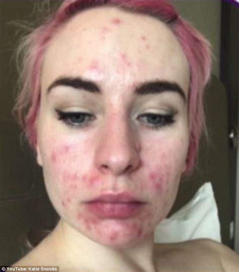 with severe acne for 10 years transforms