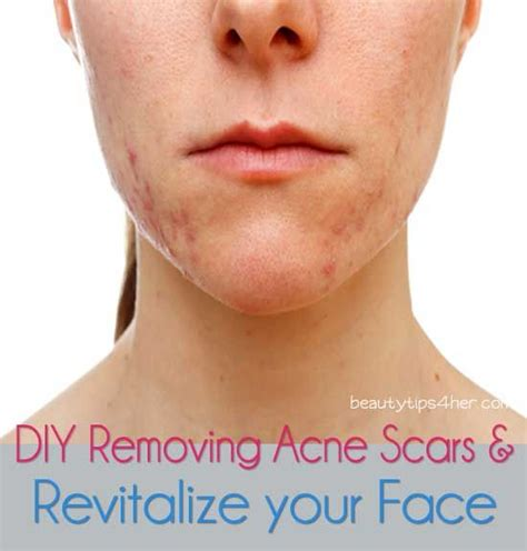 how to fade acne scars brown hairs as if having pimples weren t bad enough they can also