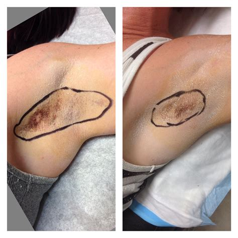 tattoo nipple reduction dr steven weiner of the aesthetic clinique shows that