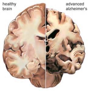 Healthy human brain scan cross section of healthy and