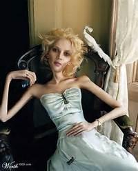 Vanidad Extrema Anorexia