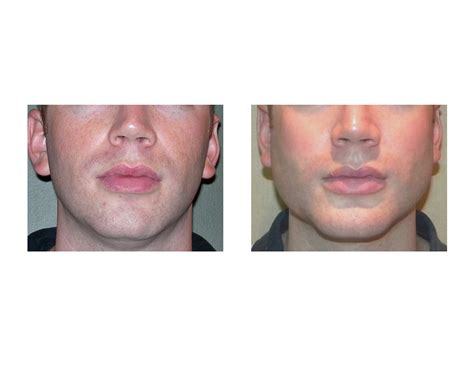 angular jaw line explore plastic surgery dr barry eppleychin
