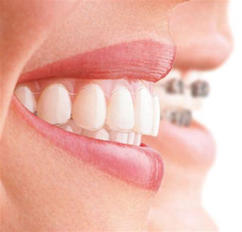 dentist melbourne smile solutions melbournes home