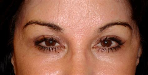 permanent makeup tattoo removal permanent makeup different removal methods