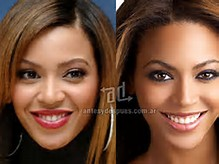Beyonce Before and After Nose Job