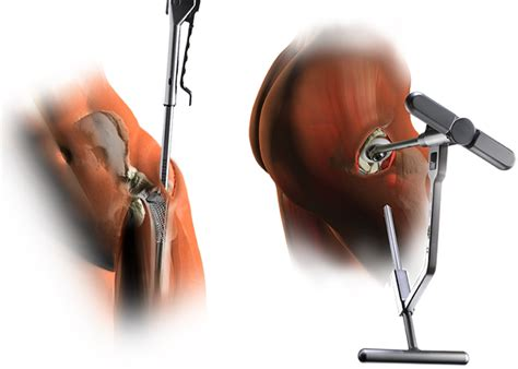 find a physician superpath hip replacement microport orthopedics