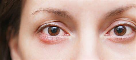orzaiolo interno occhio l orzaiolo all occhio perch 233 viene e come si cura