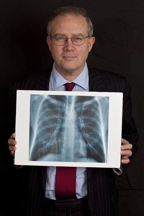 baron mp encourages lung cancer awareness