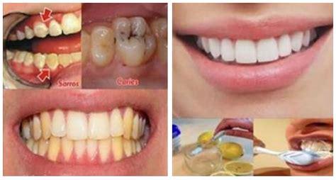Pasta Gigi Nasa Bisa Merontokkan Karang Gigi luar biasa cara ini dapat menghilangkan karies karang dan