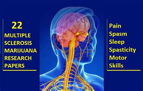 research paper on sclerosis the many ways cannabis might treat thyroid disease