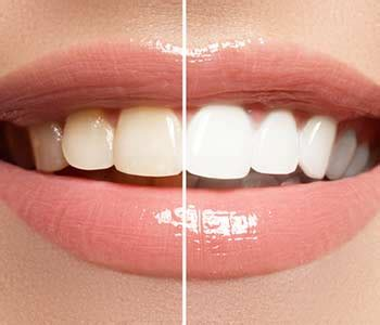improve  smile  teeth whitening  milton