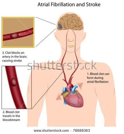 atrial fibrillation diagram stroke brain stock photos images pictures