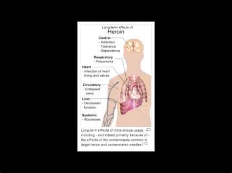 Detox For Buprenorphine And Naloxone by Heroin Addiction Methadone Naloxone Buprenorphine