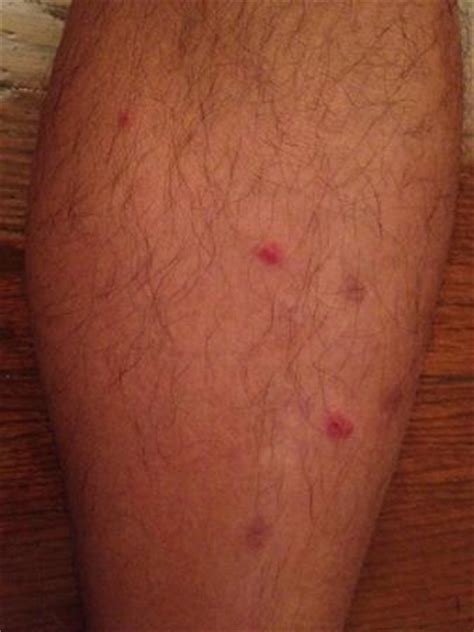 show me a picture of bed bug bites bed bug bites on arm picture of heritage house hotel