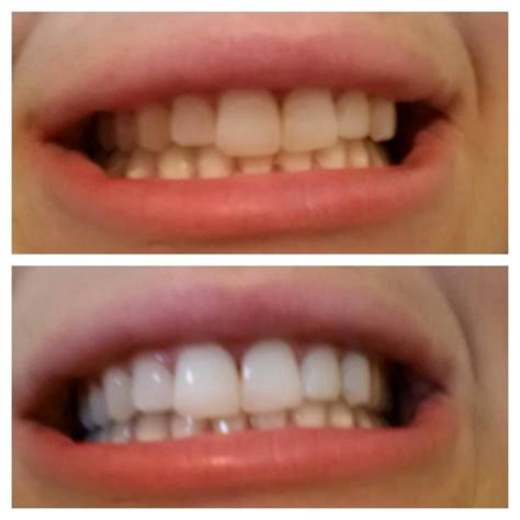 natural teeth whitening brush   minutes