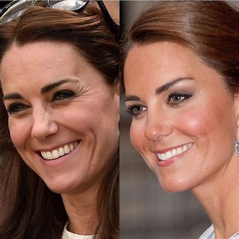 kate middleton wrinkles on forehead here is an exle of how botox and fillers can help you