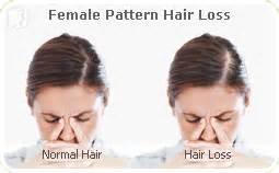 how wide is a normal hairline part hair loss symptom information 34 menopause symptoms com