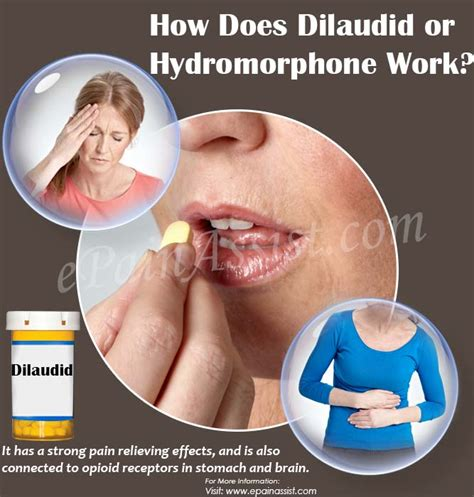 How To Detox From Dilaudid At Home by How Effective Is Dilaudid What Are Its Side Effects