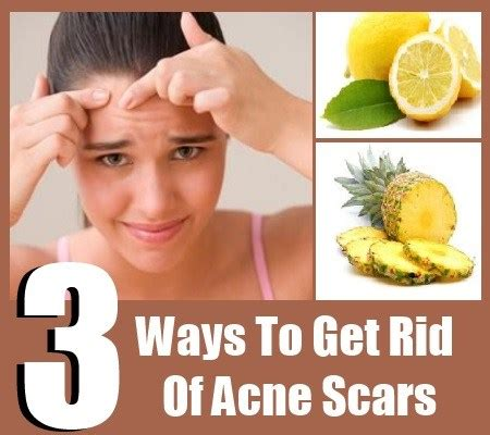 15 Top Foods To Get Rid Of Acne by How To Get Rid Of Acne Scars Remedies For Acne