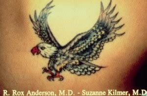 tattoo removal corpus christi laser removal in corpus christi san antonio