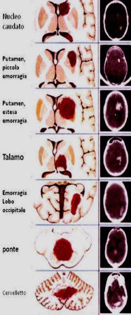 emorragia interna cause emorragie encefaliche