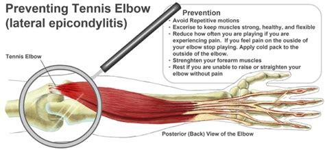 best treatment for tennis tennis treatment learn the symptoms treatment