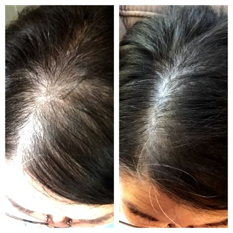 regrow african american female hair at temples women s rogaine does it really work yes it does pink
