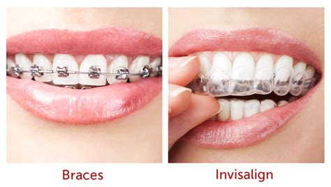 invisalign vs traditional braces sydney orthodontics invisalign sydney