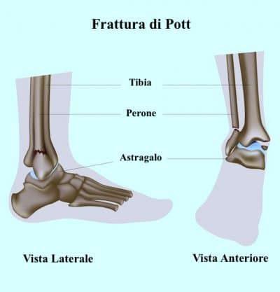 dolore alla caviglia lato interno dolore alla caviglia esterno o interno sinistra o destra