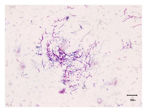 beaded gram positive rods fatal nocardia farcinica bacteremia diagnosed by matrix