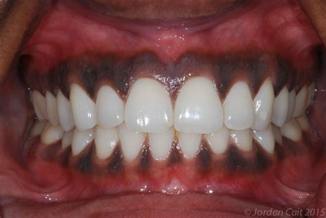what color should gums be gum bleaching improve the appearance of your gums