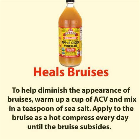17 best ideas about healing bruises on healing