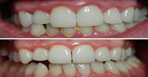 tartar removal easily remove tartar buildup on your teeth without going to the dentist juicing for