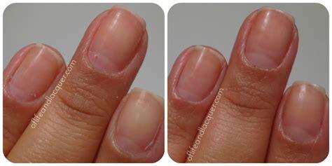 healthy nail beds normal fingernail color www pixshark com images