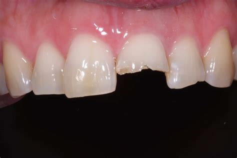 afters dentist victoria tx victoria texas dentists