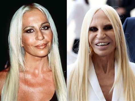 consecuencias exceso botox lo mejor famosas con exceso de cirug 237 as fotos antes y el