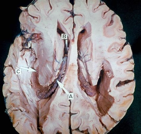 Detoxing The Csf by 78 Best Brain Zoom Out Images On Brain The