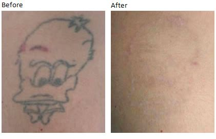cost of tattoo removal uk removal at within medi spa in cowbridge
