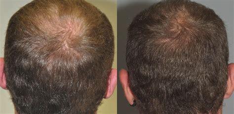 addio calvizie il libro della pgeditore i capelli astressina b per calvizie addio perdita di capelli il nuovo peptide funziona hairclinic