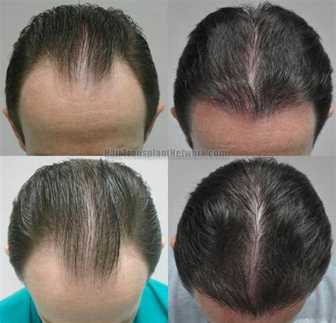 hair transplant pricelist in thailand thailand hair transplant hair transplant sessions 1 grafts